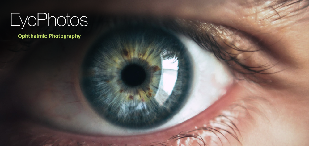 EyePhotos - Patient Management Apps For Eye Doctors